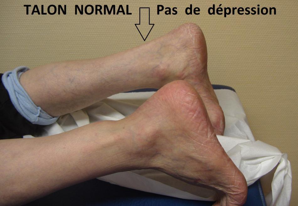 rupture du tendon d achille - tendinite du tendon d achille ...