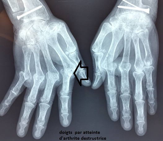 prothese ou arthrodese de doigt pathologies et operations doigts