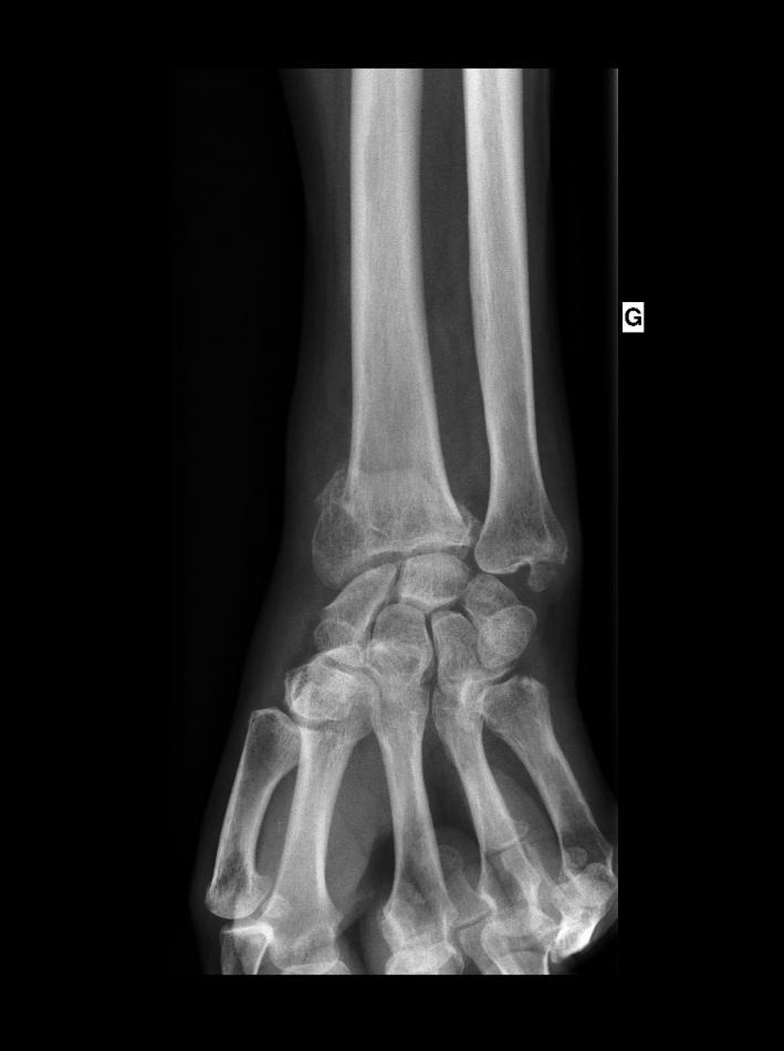 fracture du poignet ou de lextremite inferieure du radius pathologies