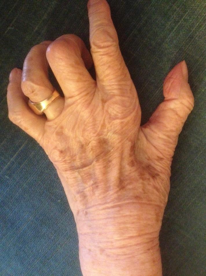 syndrome de compression du nerf cubital ou ulnaire au coude ...